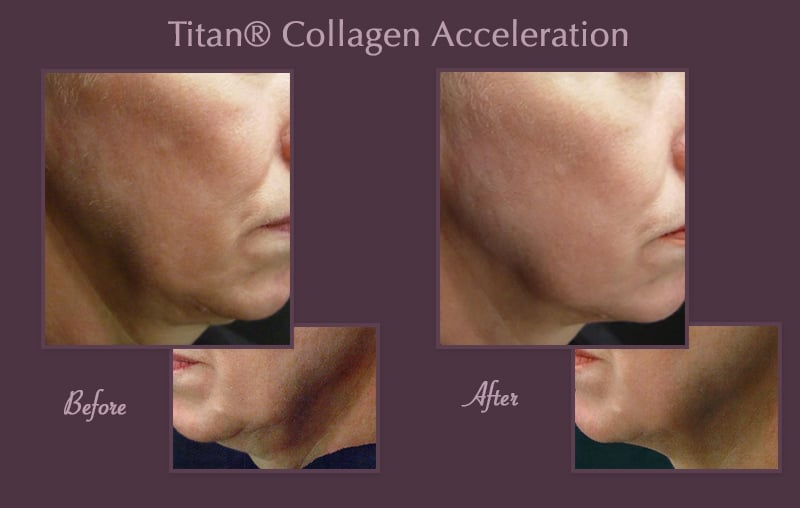 Titan® Collagen