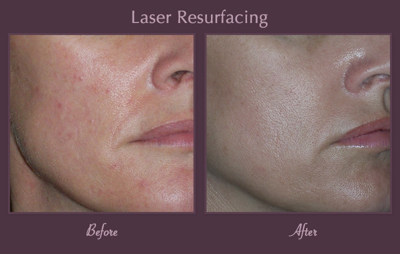 Pearl™ Laser Resurfacing | Laser & Skin Care Clinic | Dermacare