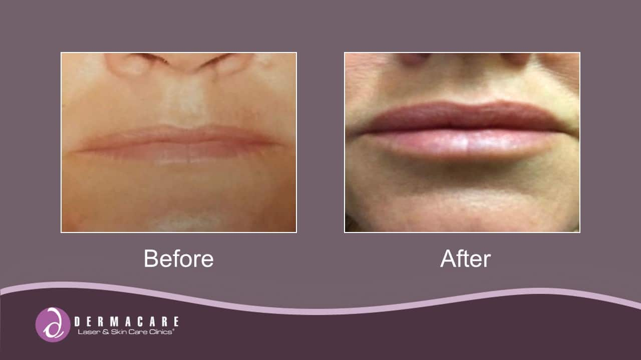 Juvéderm® Dermal Fillers | Gainesville Skin Care Clinic